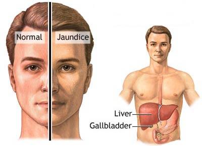 بیماری زردی یرقان  Jaundice