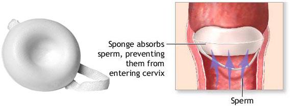 اسفنج ضد بارداری   sponge