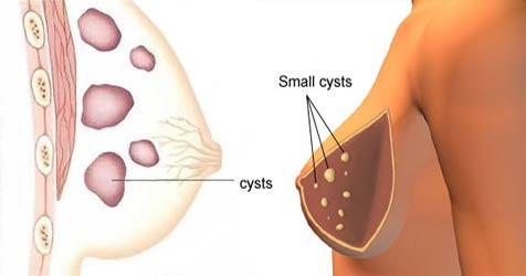 کیست سینه ( بیماری فیبروکیستیک پستان ) در زنان