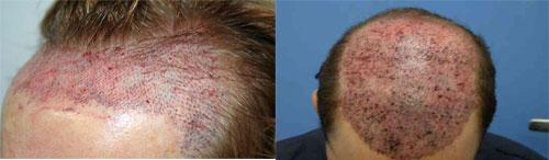hair-transplant-درمان ریزش مو از طریق کاشت موی طبیعی