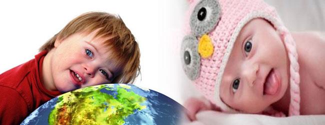 تشخیص کودکان عقب مانده ذهنی