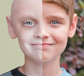 راه های پیشگیری از ابتلاء به سرطان